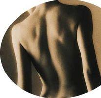 Come sbarazzarsi di cicatrici da acne sulla schiena