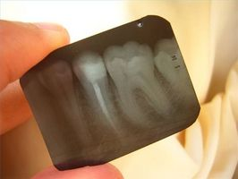 Come ottenere Emergency Dental Care
