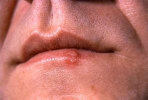 Lisina Herpes Trattamento