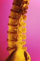 Gradi di Levoscoliosis