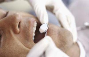 Come ottenere il vostro dente del giudizio rimosso