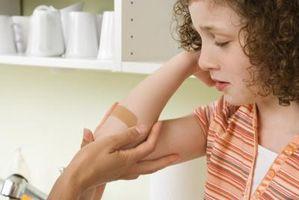 Come prendersi cura di una ferita della pelle