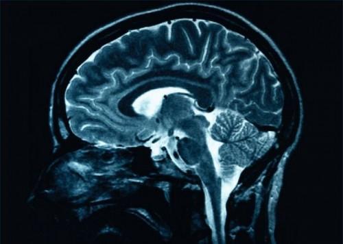 I sintomi di un lieve trauma cranico