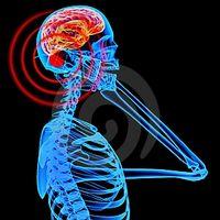 Effetti delle radiazioni sul cervello umano