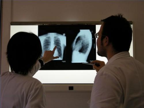 Come prevenire il cancro del polmone con vitamine