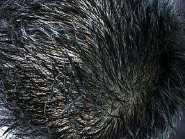 Come ridurre prurito del cuoio capelluto
