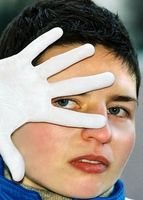 Cause di rossore in viso