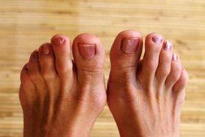 Rimedio casalingo per Calli sulle dita dei piedi