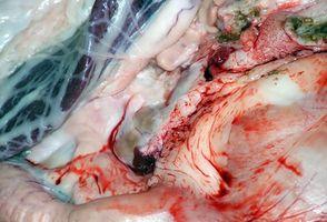 Beta bloccanti e la malattia di Crohn