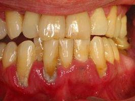 Prevenzione della malattia parodontale negli adolescenti