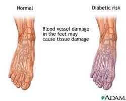 Motivi per cattiva circolazione nei piedi