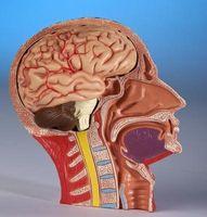 Come recuperare da ictus nel cervello