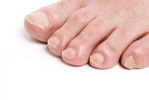 Come fasciatura dita dei piedi