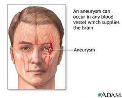 Burst Vaso sanguigno nel cervello