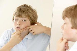Laser e Luce Trattamenti per cicatrici da acne