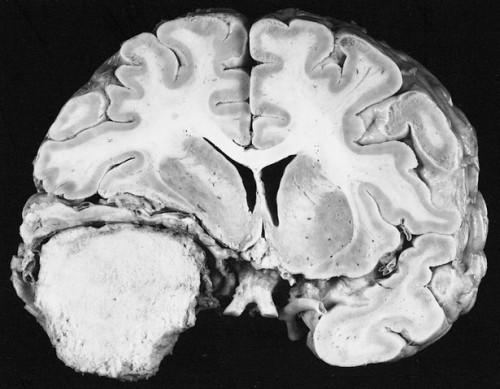 Che cosa sono i meningiomi?