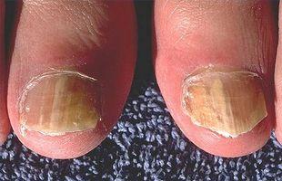 Come usare candeggina per curare fungo dell'unghia del piede