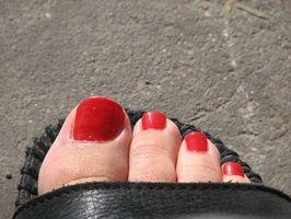 Come minimizzare sovrapposizione Pinkie dolore le dita dei piedi