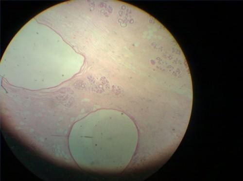 Mastopatia fibrocistica