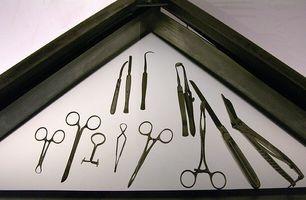 Che cosa è un curettage chirurgico?