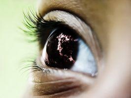 Infezione conjuctive Eye