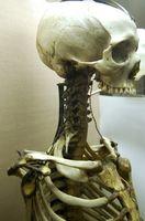 Midollo Osseo malattia metastatica