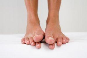 Come sbarazzarsi di piede prurito tra le dita