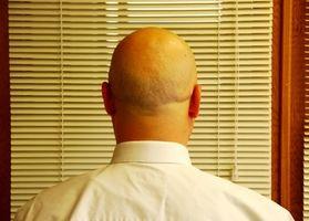 Quali sono le cause dolorose Bumps sul cuoio capelluto?
