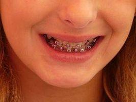 Diversi tipi di parentesi graffe per denti