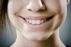 Come rimuovere macchie bianche sui denti