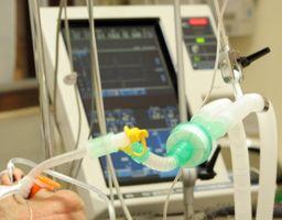 Effetti collaterali di uso comune IV anestesie