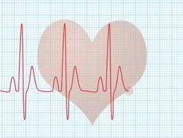 Che cosa è un Holter Heart Monitor?