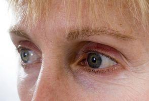Qual è innesto di grasso sotto gli occhi?
