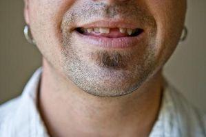 Come coprire i denti mancanti in bocca
