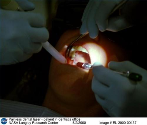Complicazioni estrazione dentale