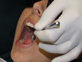 Fa Medicare Pay per dentisti?