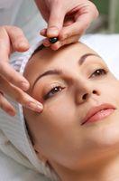 Come sbarazzarsi di cicatrici da acne