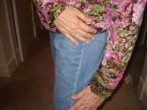 Come individuare i sintomi della sindrome della banda ileotibiale (ginocchio del corridore)