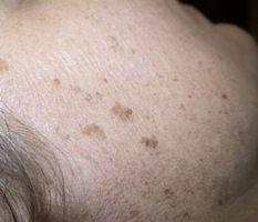 Come rimuovere macchie di età dalla pelle