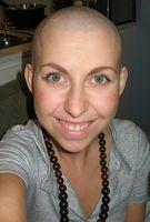 Trattamenti crescita dei capelli dopo la chemio