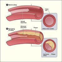 Quali sono i pericoli di colesterolo alto?