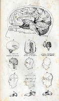 Quali sono le cause di infiammazione nel lobo frontale del cervello?