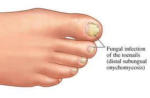 Cure comuni per fungo dell'unghia del piede
