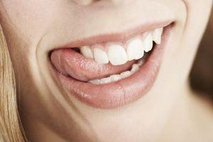 Come presentare un dente scheggiato tra i denti