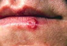 Home rimedi per herpes labiale sulle labbra
