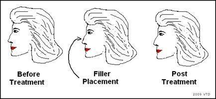 Naso non chirurgico Cartilagine Riduzione