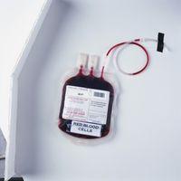 Come stabilizzare di zucchero nel sangue dopo la donazione di sangue