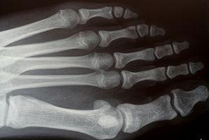 I sintomi che richiedono un chirurgo ortopedico