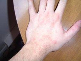 Come trattare Hives con Benadryl