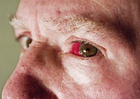 Occhi rossi e problemi al fegato